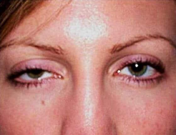 Глазная форма миастении