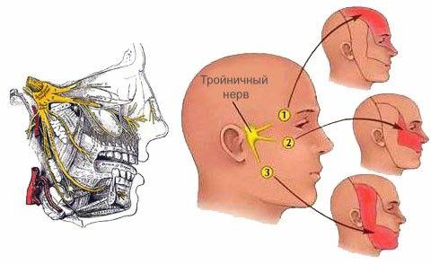 Причины прострелов в голове - симптомы и лечение. Зоны иннервации тройничного нерва