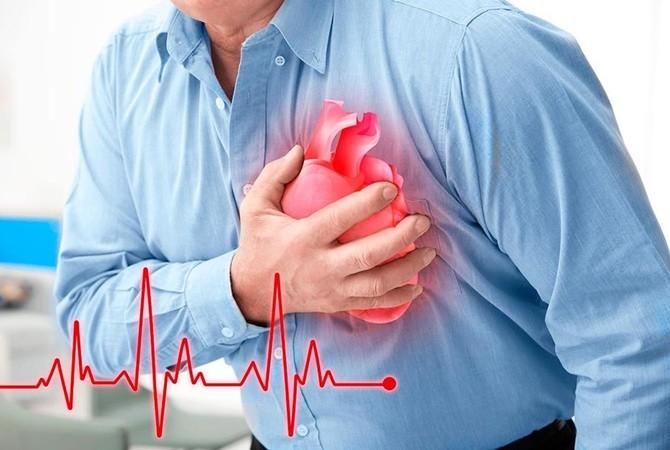 Симптомы инфаркта - лечение и профилактика