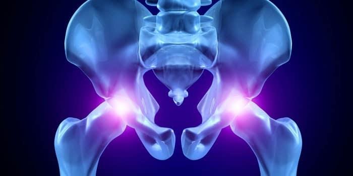 Артроз тазобедренного сустава симптомы и лечение