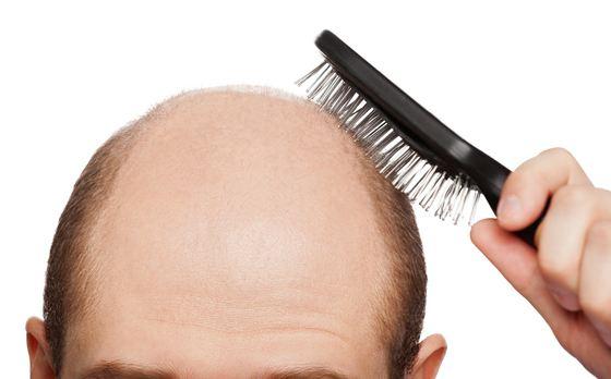 Выпадение волос часто можно приостановить
