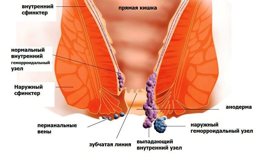 Наружный геморрой: симптомы и лечение