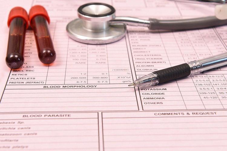 Уровень сахара в крови - симптомы повышения, норма и подготовка к анализу
