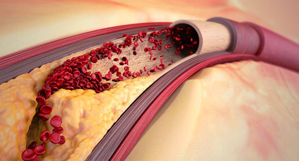 Высокий холестерин лечение причины