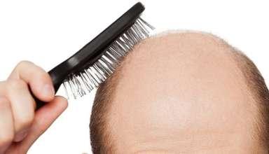 Гормональное выпадение волос у мужчин