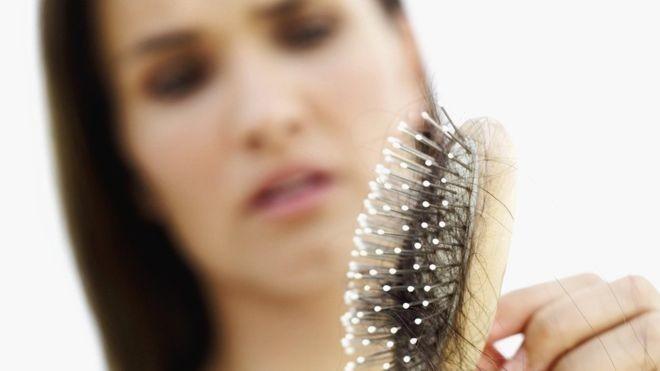 Причины и диагностика выпадения волос