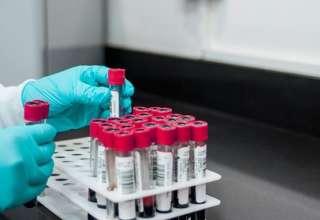 Самые эффективные способы лечения коронавируса