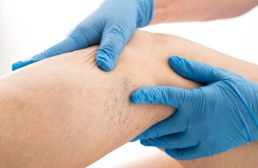Хроническая венозная болезнь ног