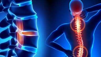 Остеохондроз позвоночника - причины и лечение