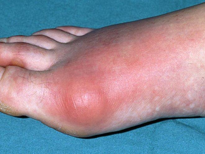 Подагра симптомы и диагностика