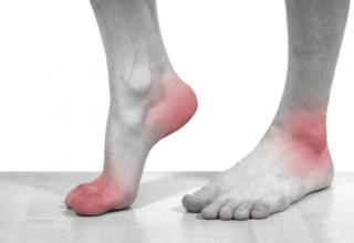 Подагра - симптомы и лечение